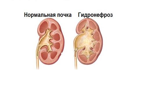 Гидронефроз почки — причины, симптомы и лечение