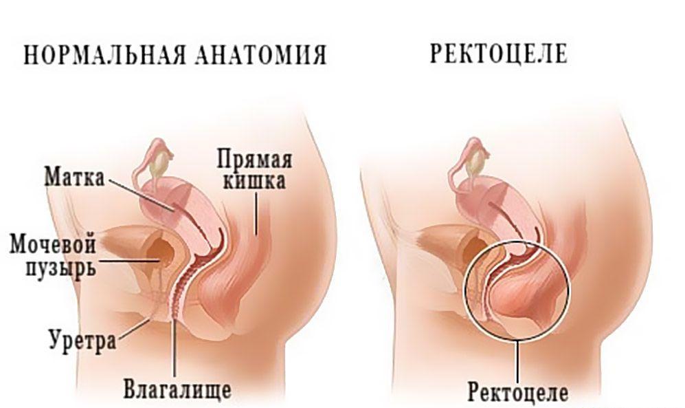 pripuhlost-na-analnom-otverstii